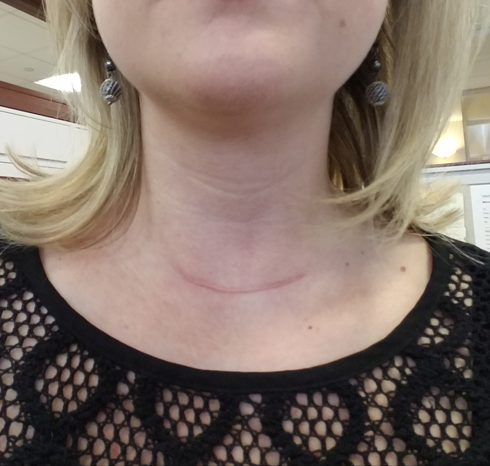 Dating someone with anxiety issues after thyroidectomy